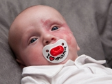 Loris, 5 Monate alt
