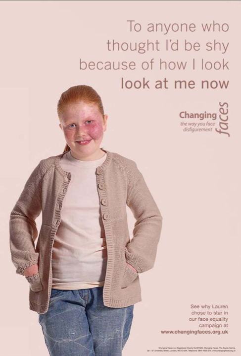 Childrens Face Equality Campaign 2