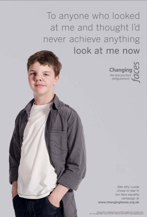 Childrens Face Equality Campaign 3