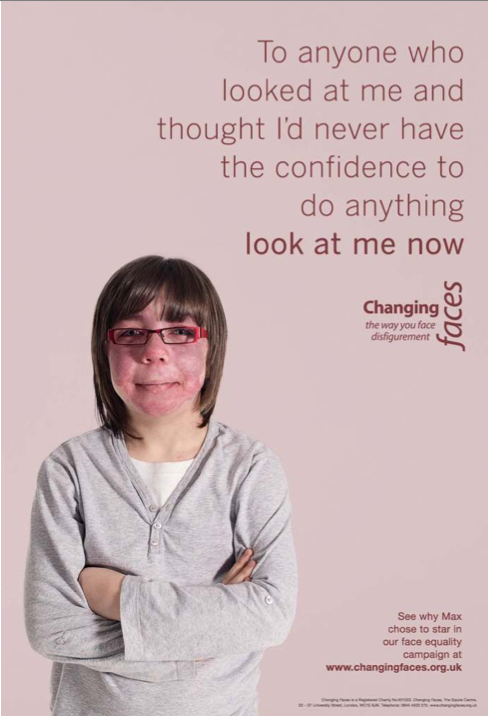 Childrens Face Equality Campaign 4