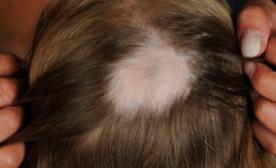 Alopezia